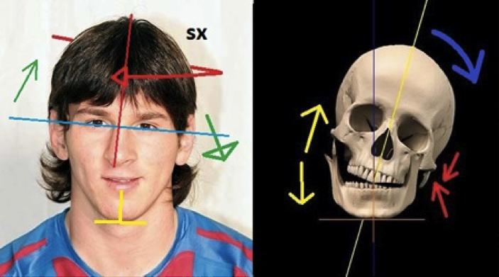 messi-cranio